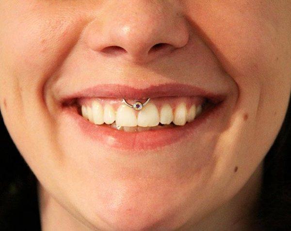 Lippenband