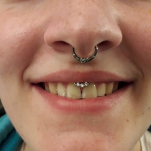 septumpiercing smileypiercing lippenbändchenpiercing